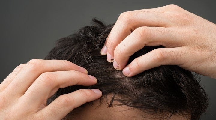 diet causing hair loss