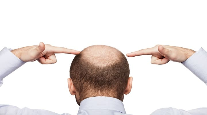 home remedies for male baldness
